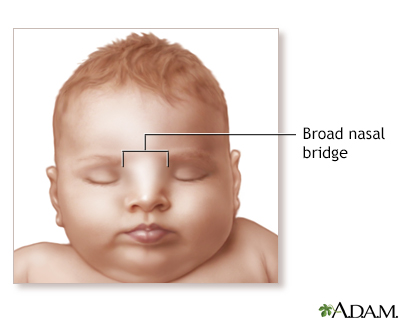 Broad nasal bridge