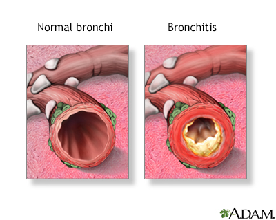 Bronchitis