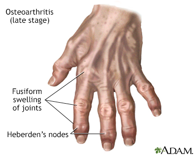Osteoarthritis