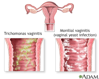 Causas de prurito vaginal