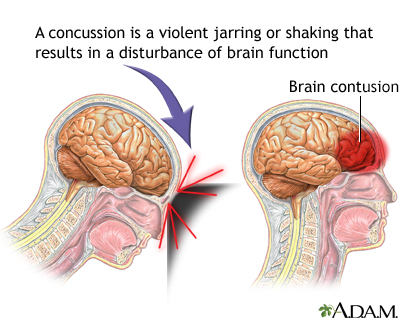Concussion