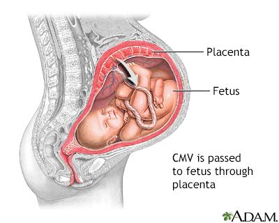 Congenital cytomagalovirus