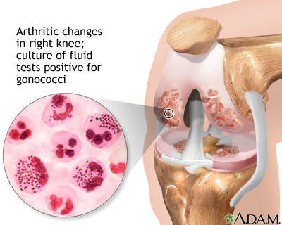 Gonoccocal arthritis