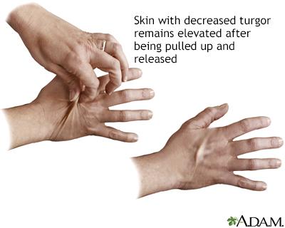 Turgencia de la piel