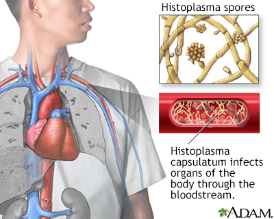 Disseminated histoplasmosis