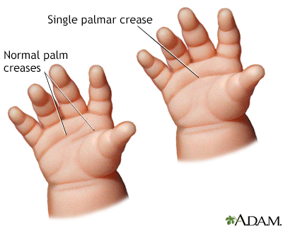Simian crease