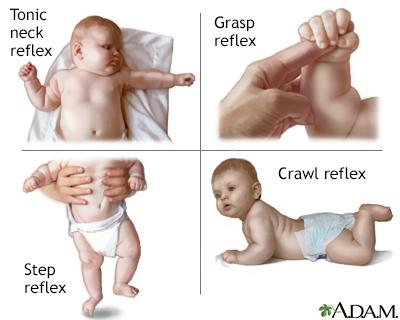 Infantile reflexes