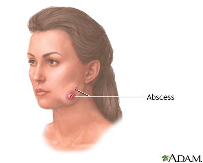 Actinomicosis (mandíbula hinchada)
