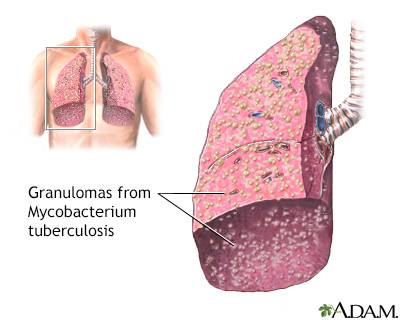 Miliary tuberculosis