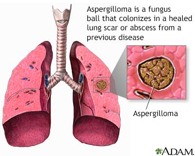 Aspergiloma