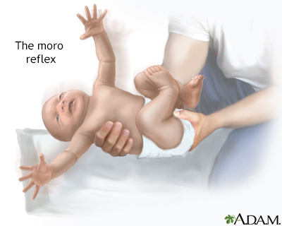 Moro reflex