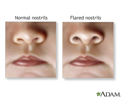 Nasal flaring