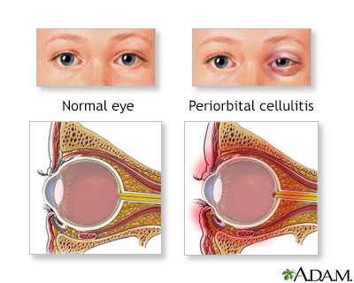 Periorbital cellulitis