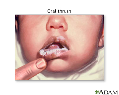 Oral thrush