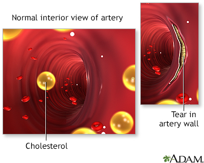 Arterial tear in internal carotid artery