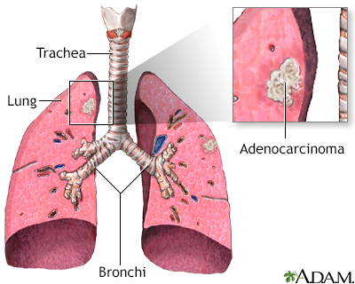 Adenocarcinoma