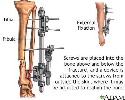 External fixation device