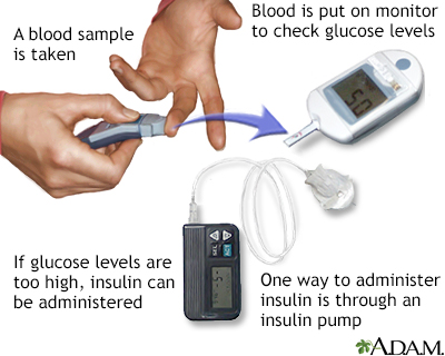 Insulin test