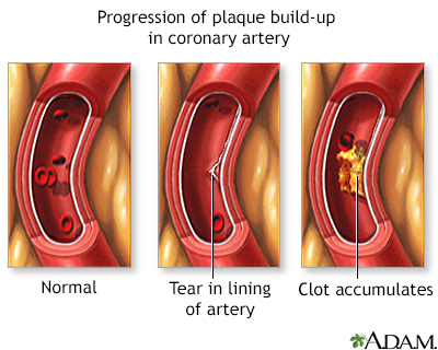 Progressive build-up of plaque in coronary artery