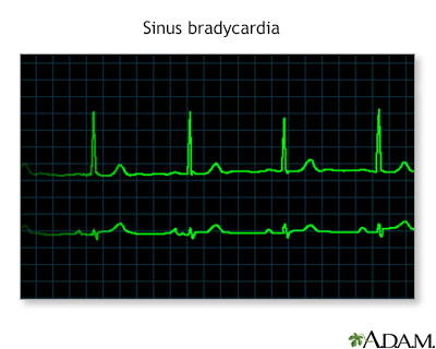 Bradycardia