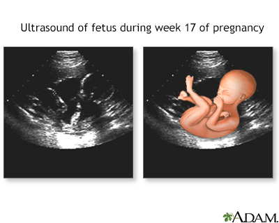 17 week ultrasound