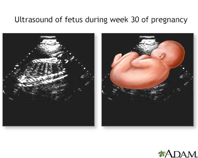 Ultrasonido a las 30 semanas