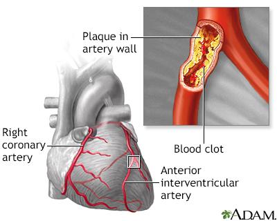 Aterosclerosis