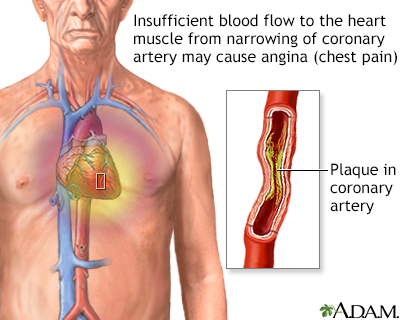 Stable angina