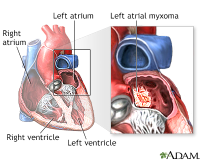 Left atrial myxoma
