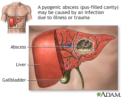 Pyogenic abscess