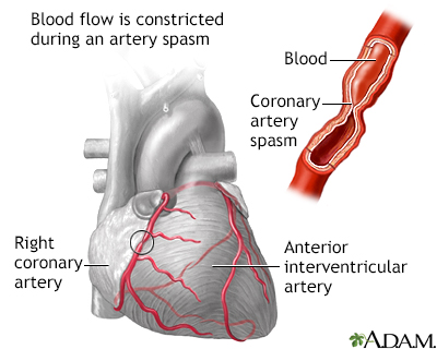 Espasmo de la arteria coronaria