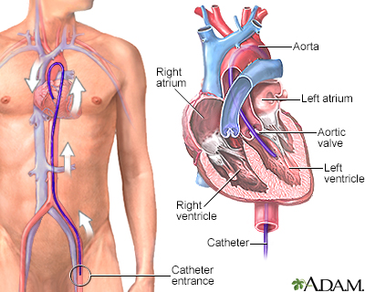 Left heart catheterization