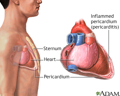 Pericarditis