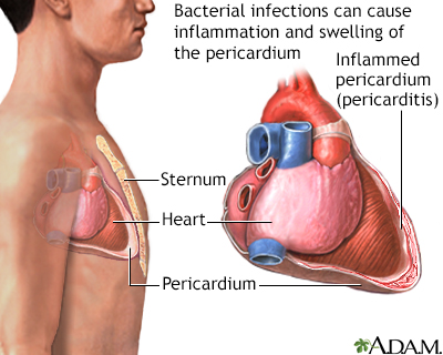 Bacterial pericarditis
