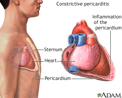 Constrictive pericarditis
