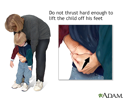 Heimlich maneuver on conscious child