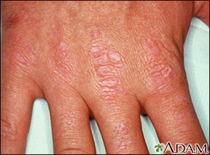 Dermatomyositis, Gottron's papules on the hand