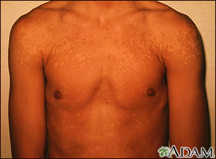Tinea versicolor - shoulders