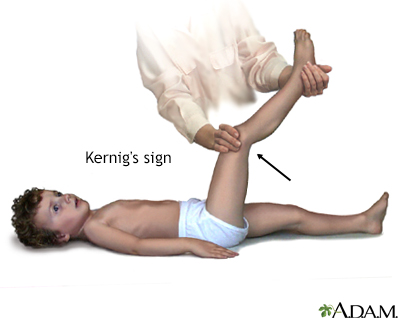 Kernig's sign of meningitis