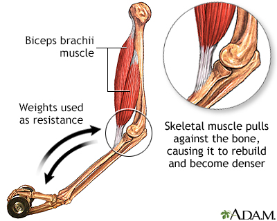 Bone-building exercise
