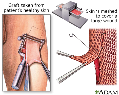 Skin graft