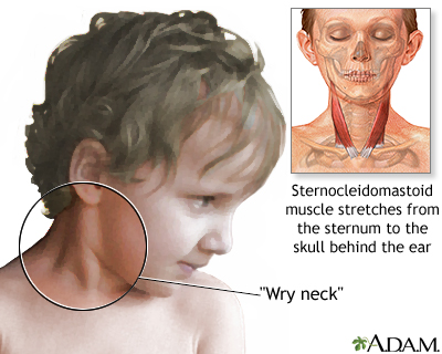Torticollis (wry neck)