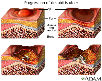 Progression of a decubitis ulcer