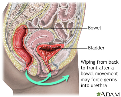 Prevention of cystitis