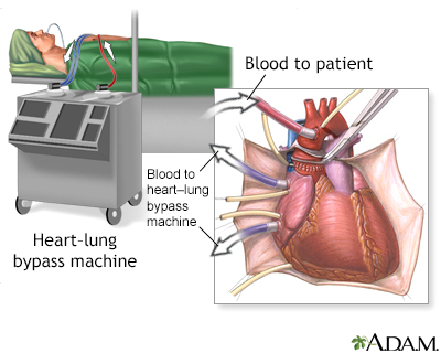 Heart-lung bypass machine