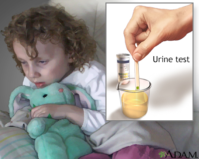 Urine test for ketoacidosis