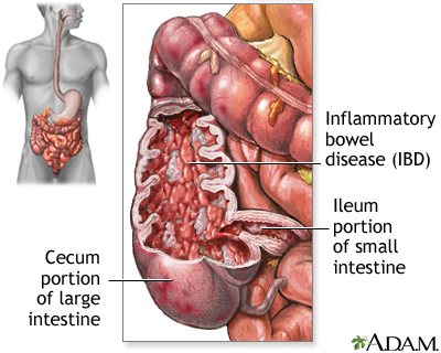 Inflammatory bowel disease