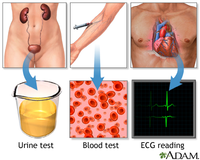 High blood pressure tests