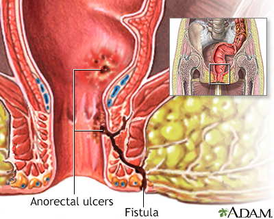 Anorectal fistulas