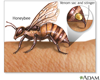 Insect stings and allergy